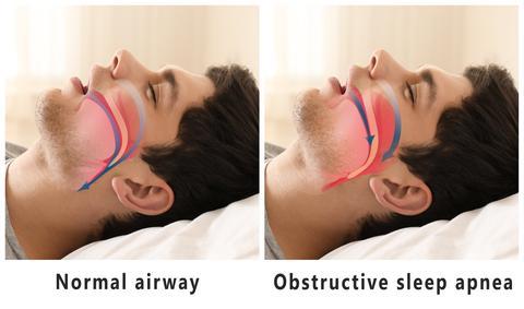 What is Sleep Apnea? Image Example | CPAP Specialists Australia